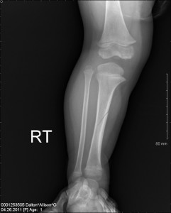 Tibia-Fracture